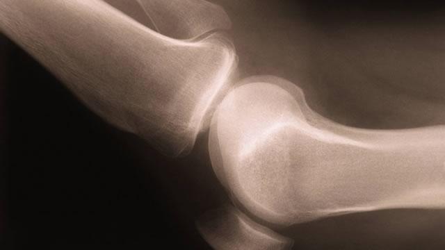 В суставы кровь плохо поступает оси вращения височно нижнечелюстного сустава